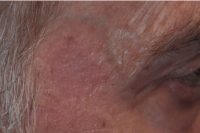 brown spot removal - after treatment
