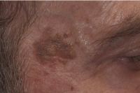brown spot removal - before treatment