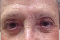permanent eyebrows - before
