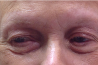 permanent makeup - eyebrows - before