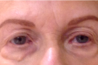 permanent makeup - eyebrows - after
