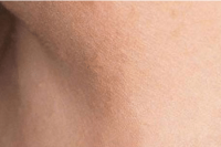 skin tag removal - after treatment