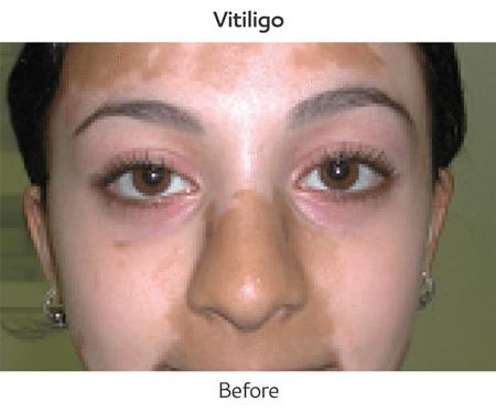 Xtrac Excimer Laser Siperstein Dermatology Group