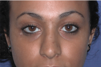 vitiligo - after xtrac treatment