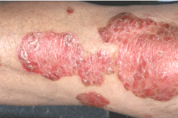 psoriasis - before xtrac treatment