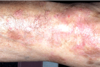 psoriasis - after xtrac treatment