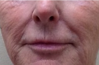 deep laser skin resurfacing - before