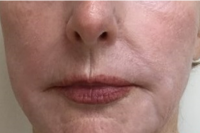 deep laser skin resurfacing - after
