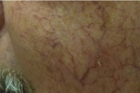 blood vessels treatment - before