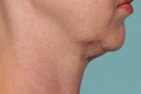 kybella - before