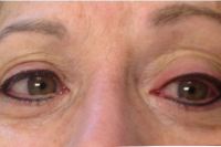 Permanent Makeup - eyeliner - After