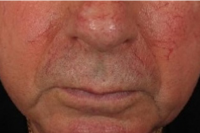 rosacea treatment - before