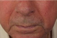 rosacea treatment - after