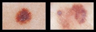 skin-cancer-a