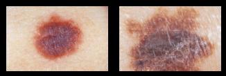 skin-cancer-b