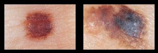 skin-cancer-c
