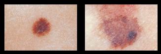 skin-cancer-d