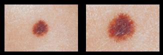 skin-cancer-e