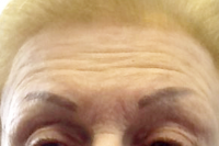 botox - before