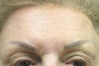 botox - after