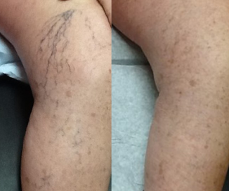 photos of Asclera spider vein before and after