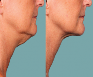 photos of Kybella before and after