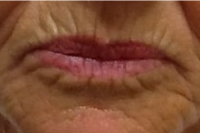 lip line fillers before