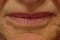 lip lines - after