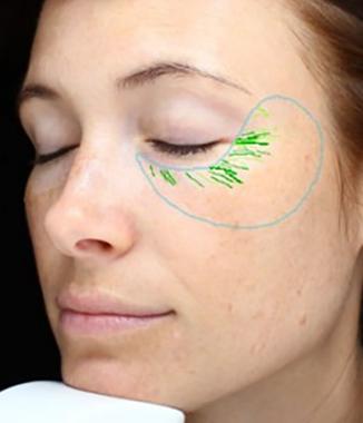 visia skin analysis
