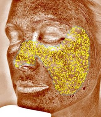 visia-06-brownspots