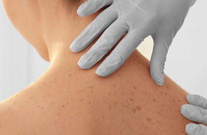 Actinic Keratosis (AK) skin cancer