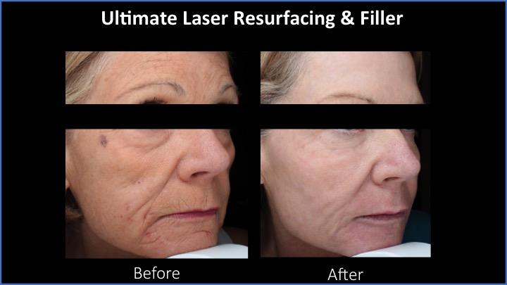 Ultimate Laser Resurfacing and Filler