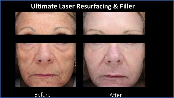 Ultimate Laser Resurfacing and Filler