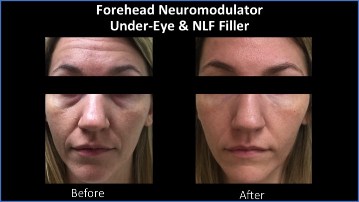 Forehead Neuromodulator and Under-Eye and NLF Filler