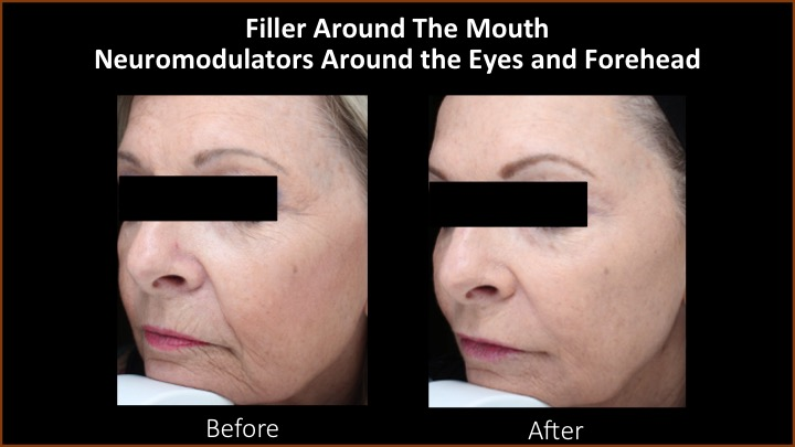 Filler Around the Mouth and Neuromodulators Around the Eyes and Forehead