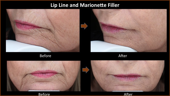 Lip Line and Marionette Filler