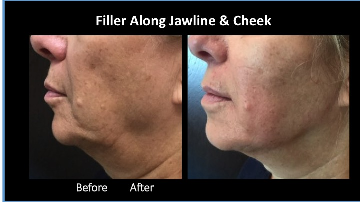 Filler Along Jawline and Cheek