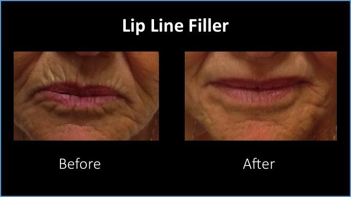 Lip Line Filler