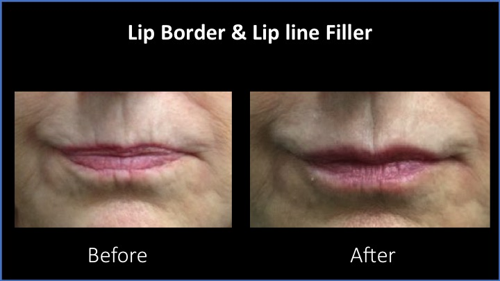 Lip Border and Lip Line Filler