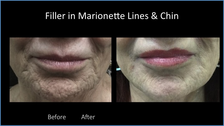Filler in Marionette Lines and Chin