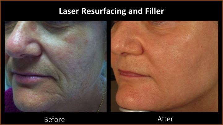 Laser Resurfacing and Filler
