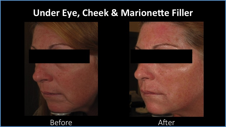 Under Eye, Cheek and Marionette Filler