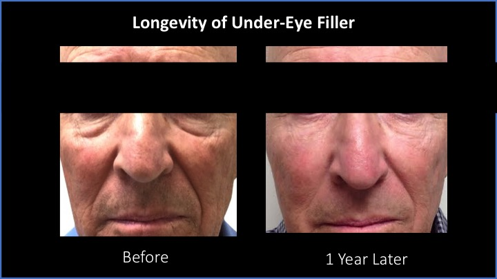 Longevity of Under-Eye Filler