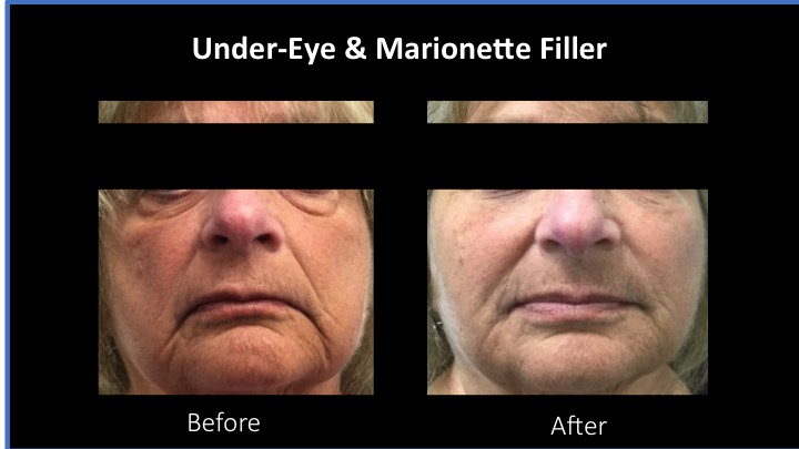 Under-Eye and Marionette Filler