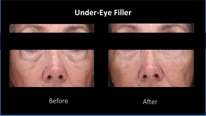 Under-Eye Filler