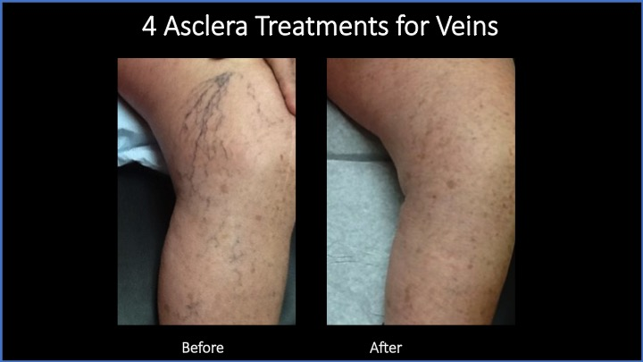 4 Asclera Treatments for Veins