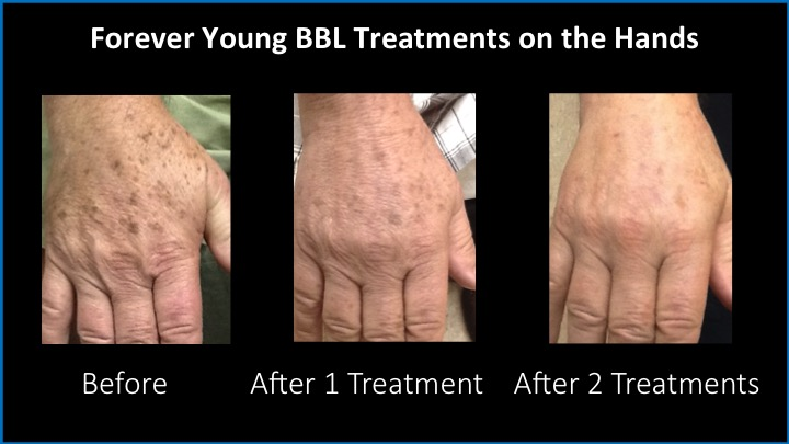 Forever Young BBL Treatments on the Hands