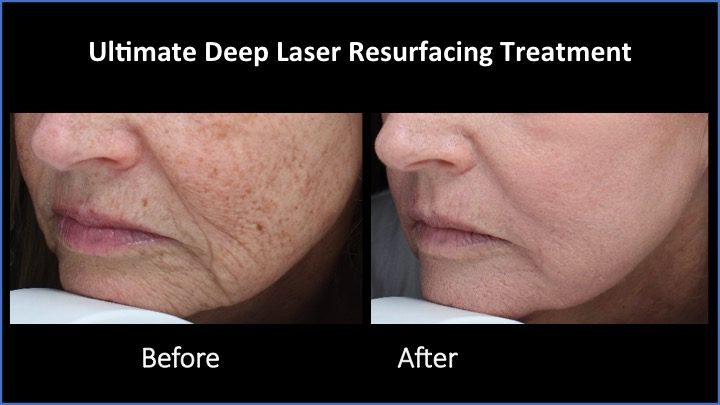 Ultimate Deep Laser Resurfacing Treatment