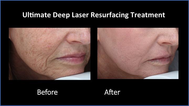 Ultimate Deep Laser Resurfacing Treatment