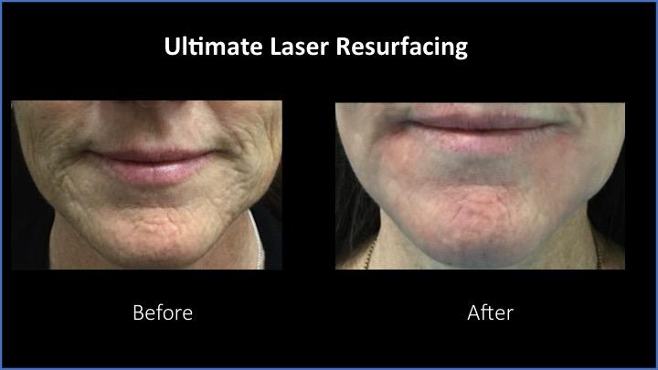 Ultimate Laser Resurfacing